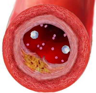 очистить сосуды от холестерина чеснок