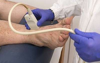 ультразвуковое обследование проходимости сосудов (допплерография)