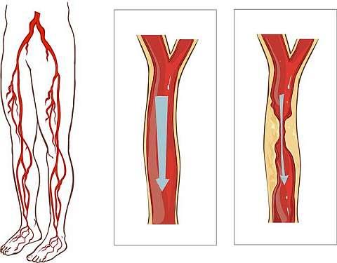 Атеросклероз вызывает перемежающуюся хромоту наиболее часто