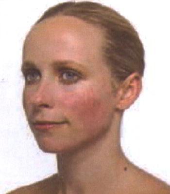 Розацеа на лице фото