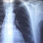 Как избежать лишнего рентгеновского облучения?
