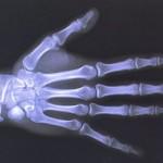 Рентген — биография и история открытия