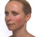 Розацеа на лице фото (Rosacea)