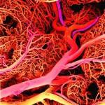 Диета для сосудов, как удалить холестериновые бляшки