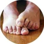 Грибок на ногах, грибковая инфекция при диабете