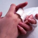 Экзема, причины, лечение, что делать в домашних условиях