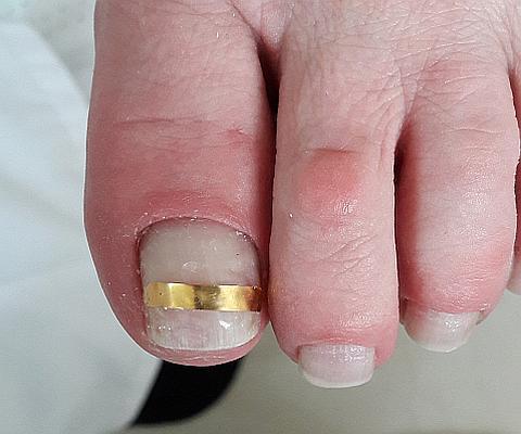 Лечение вросшего ногтя - зажимы