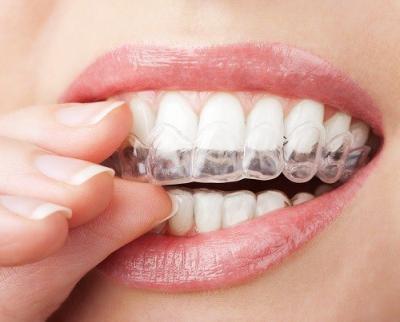 Скрежет зубами или бруксизм