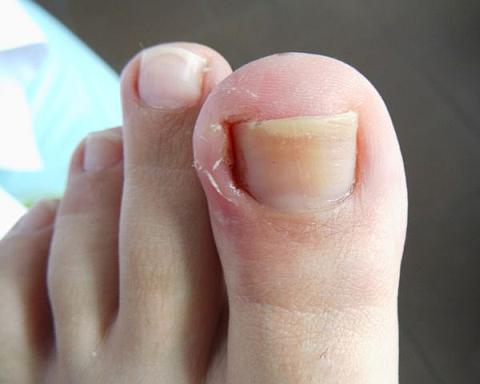Как выглядит вросший ноготь на ноге