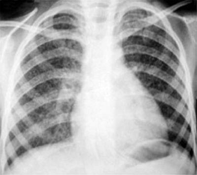 Заболевания легких от воздействия зерновой и мучной пыли