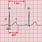 Синдром удлиненного Q-T интервала причины, препараты