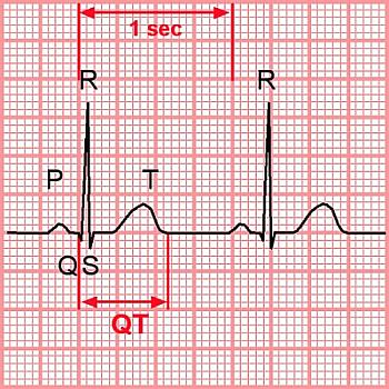 Синдром удлиненного Q-T интервала