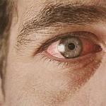 Глаукома причины, симптомы, лечение глаукомы