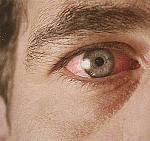 Глаукома причины