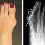 Косточка на ноге, вальгусная деформация пальцев стоп. Hallux valgus