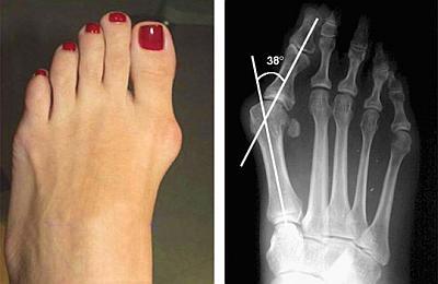 Hallux valgus вальгусная деформация пальцев стоп