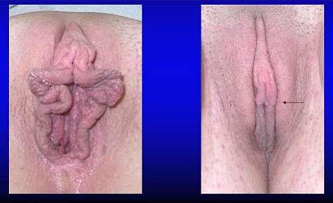 Передняя лабиопластика фото