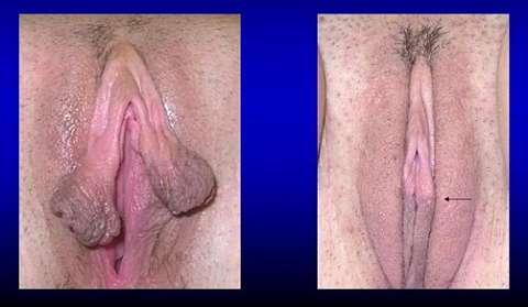 Центральная лабиопластика фото