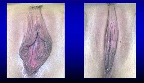 Диффузная лабиопластика фото