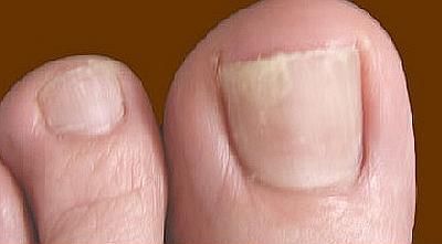 Грибок ногтей на ногах, фото, признаки, лечение
