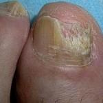 вторая стадия грибка ногтей на ноге
