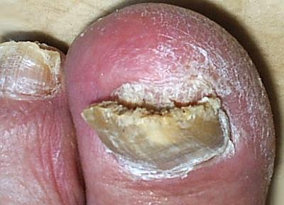 Грибковые инфекции ногтей – лечение и риски онихомикоза
