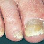 грибковые отложения под ногтями