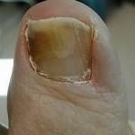 распространение грибка на ногтя