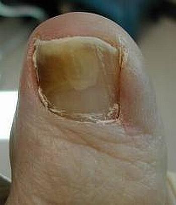 Грибковые заболевания ногтей: лечение онихомикоза
