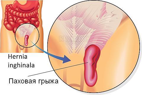 Причины боли в паху - грыжа
