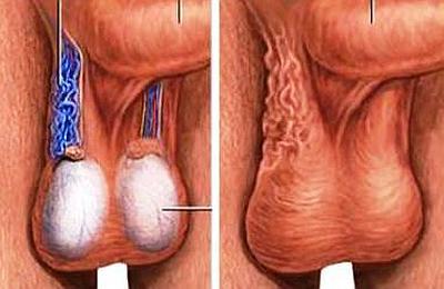 Варикоцеле - причина боли в яичках