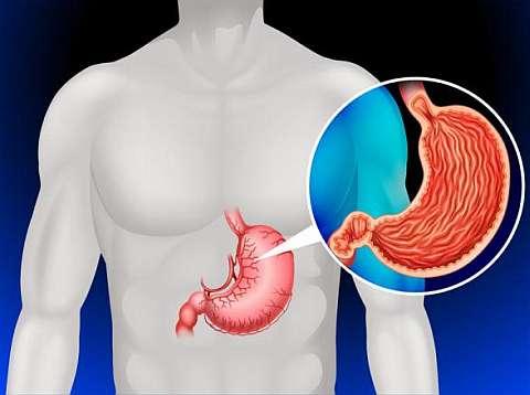 Рак желудка онкомаркер